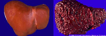 Cirrhotic Liver